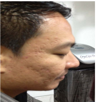 iFrax Clinical Study by Aya in Manila(s) Before