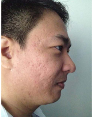 iFrax Clinical Study by Aya in Manila(s)After