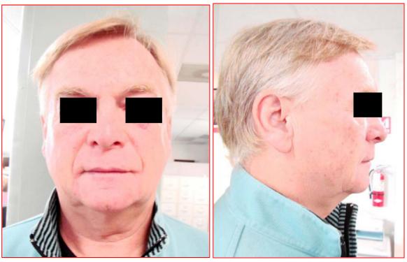 iFrax Micro-Fractional RF + Needling Treatment StudyAfter