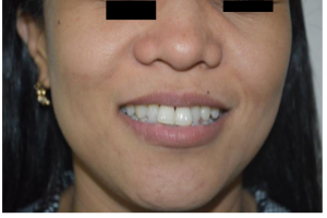 iFrax Treatment for Perioral and Periorbital Wrinkles Before