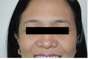 iFrax Treatment for Perioral and Periorbital WrinklesAfter