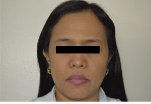 iFrax Treatment for Perioral and Periorbital WrinklesAfter2
