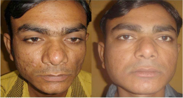 iFrax Treatment Study Before and After 1