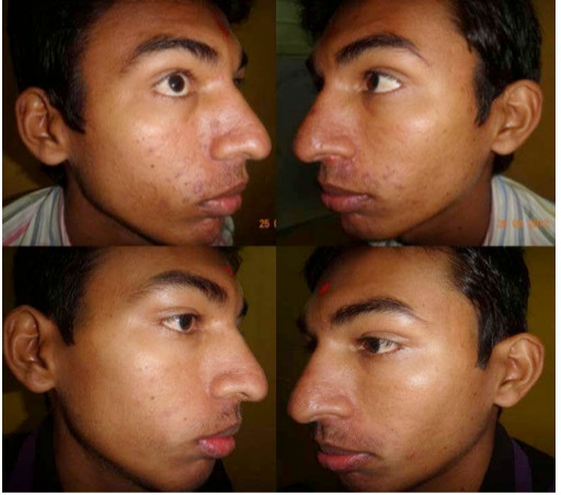 iFrax Treatment Study Before and After 2