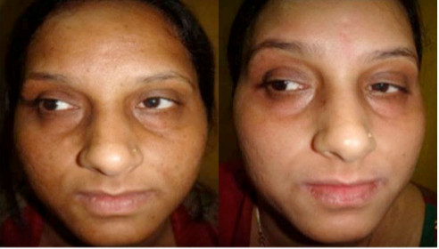 iFrax Treatment Study Before and After 3