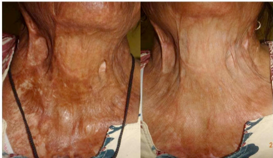 iFrax Treatment Study Before and After 4